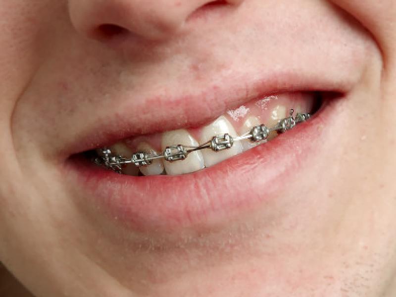 teamtand-tandstallning